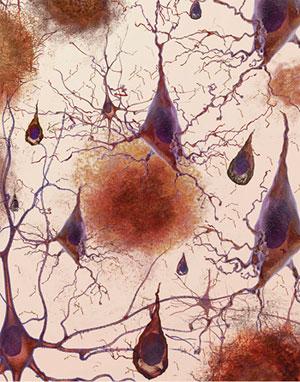 Placas amilodes (manchas rojizas) entre las neuronas cerebrales de un paciente del mal de Alzheimer. Foto National Institutes of Health