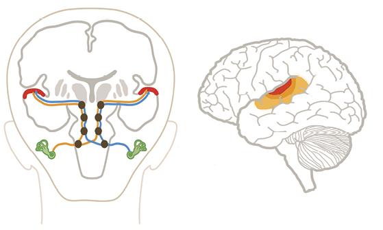 Representación esquemática de las vías neuronales y los centros de procesamiento de la información auditiva en el cerebro humano. Izquierda: los nervios auditivos (en azul y anaranjado) que llevan la información de los oídos (en verde) al cerebro pasan por cuatro núcleos de procesamiento auditivo intermedio (círculos oscuros) antes de llegar a la zona auditiva primaria en los lóbulos temporales de la corteza cerebral (en rojo). Derecha: vista lateral del cerebro humano en la que se indica (en rojo) la zona auditiva primaria del lóbulo temporal de la corteza y sus zonas adyacentes (en anaranjado). Dibujo Juan Manuel Garrido