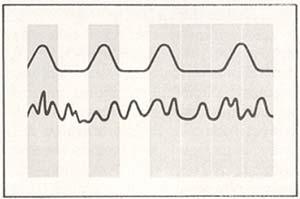 Fig.2 Ritmos biológicos en la rata, en períodos de luz (zona blanca) y oscuridad (zona grisada). El animal presenta normalmente una periodicidad de 24 horas en condiciones alternadas de luz y oscuridad, y de aproximadamente 24 horas en la oscuridad permanente (curva superior). Si se lesiona el núcleo supraquiasmático, desaparecen los ritmos circadianos (curva inferior).