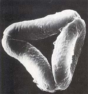 Tres eritrocitos en una microfotografía de microscopía electrónica de barrido (x7000).