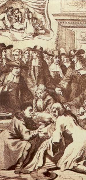 Primeros intentos quirúrgicos de extracción de un cálculo del tracto urinario. (Grabado del siglo XVII).