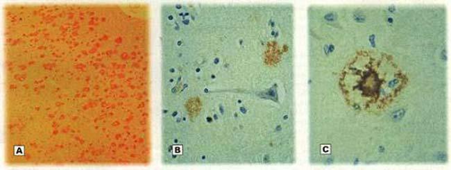 Fig. 3 : Ejemplos de la forma en que se deposita el amiloideb en el cerebro. A) Placas neuríticas que han invadido masivamente la corteza cerebral (Aumento: 40x). B) Localización extraneuronal de las placas neuríticas. C) Se observa la zona compacta central de sustancia amiloide en una placa neurítica (Aumento 200x)