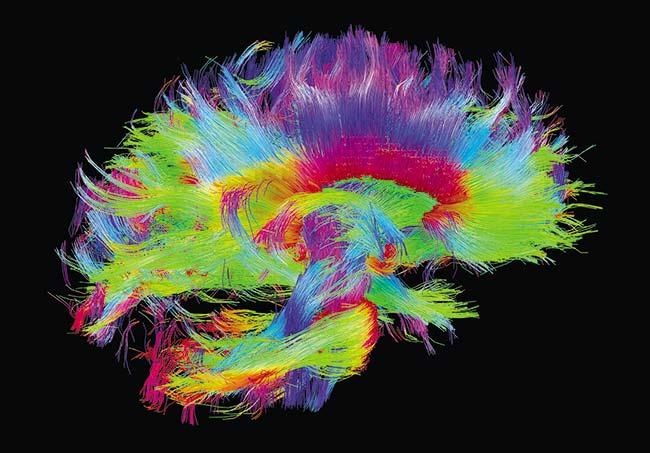Imagen de los circuitos neuronales del cerebro obtenida por resonancia magnética. Foto Human