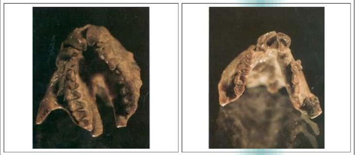 Fig.3. a) Vista del paladar de Greberia con todos los dientes superiores. El paladar es muy abovedado y presenta fenestras en su mitad posterior. Los dientes se disponen apretadamente entre sí, como ocurre en muchos primates. El diente más saliente de la serie es el tercer premolar. b) La mandíbula en vista oclusal. Nótese la robustez de ambas ramas mandibulares y la gruesa capa de esmalte que rodea a todos los dientes. Los espacios entre incisivos y molares se deben a que no se preservaron los dientes intermedios.