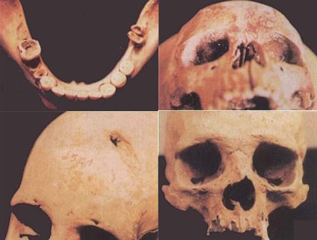 Izq: Vista superior de una mandíbula, en la que se muestran los dientes posteriores destruidos por caries. Der: Cráneo de niño que muestra, en el techo de las órbitas, osteoporosis porótica o criba orbitaria, generalmente asociadas con la anemia. Izq Abajo: Cráneo de adulto que muestra una marca de golpe en el hueso frontal. Der Abajo: Vista frontal de un cráneo de adulto que muestra una marca de golpe en la nariz.