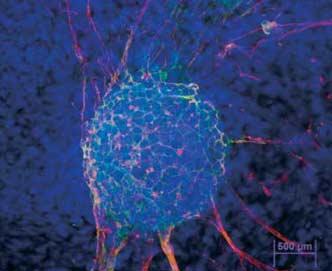 Esperanzas, desafíos y realidades de la medicina regenerativa