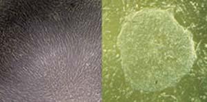 Izquierda: fibroblastos derivados de una biopsia de piel: Derecha: células madre humanas reprogramadas obtenidas de los fibroblastos de la izquierda. Imagen Juan Cruz Casabona y Mariana Casalía.